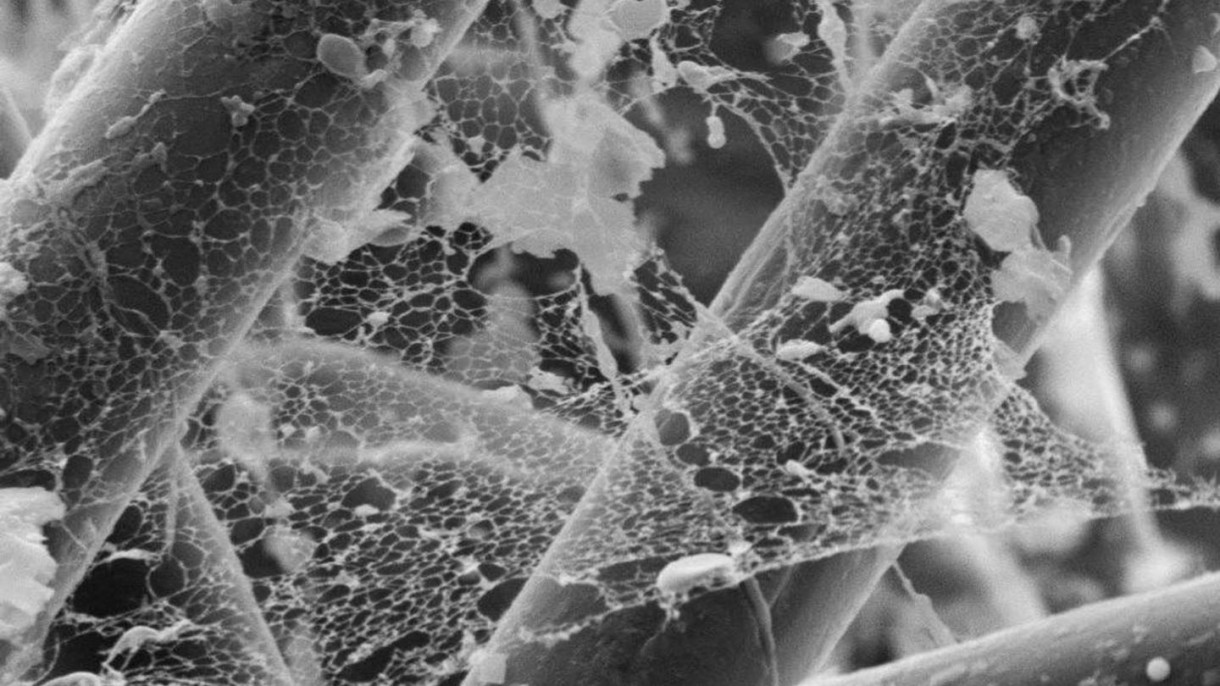 scanning electron microscopy on silk mesh network Ring-mesh model of proteoglycan glycosaminoglycan chains in tendon based on three-dimensional reconstruction by focused ion beam scanning electron microscopy.